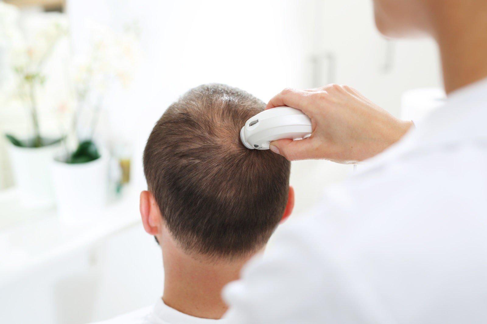 Haartransplantation Behandlung