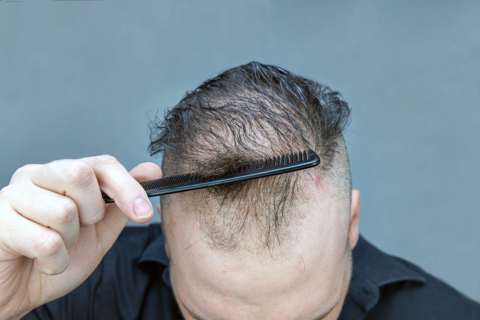 verpfuschten Haartransplantation?