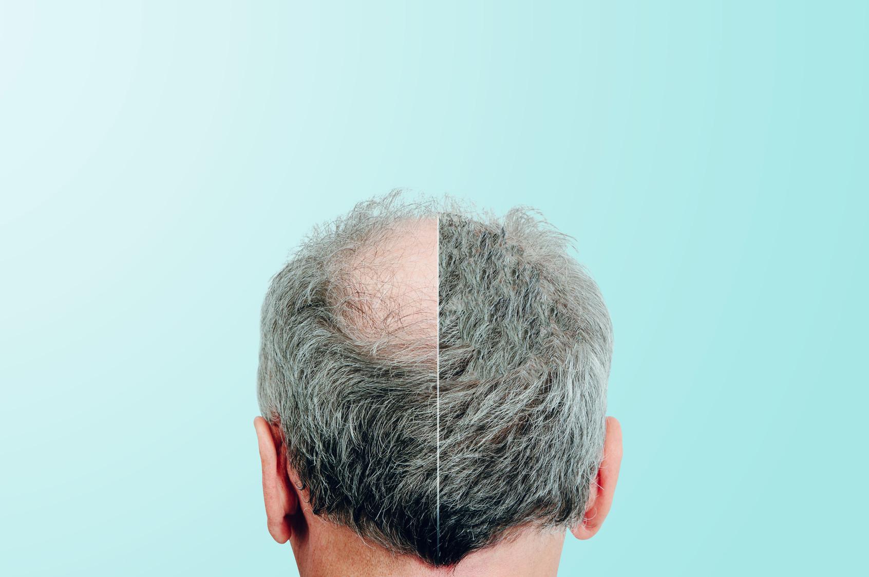 Ergebnis Haarverpflanzung