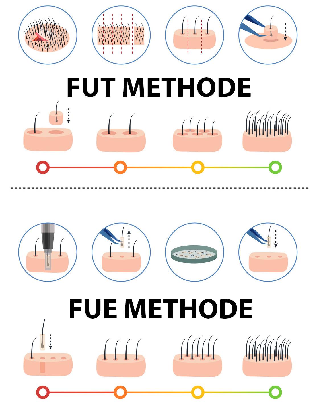 FUT-Methode-FUE-Methode