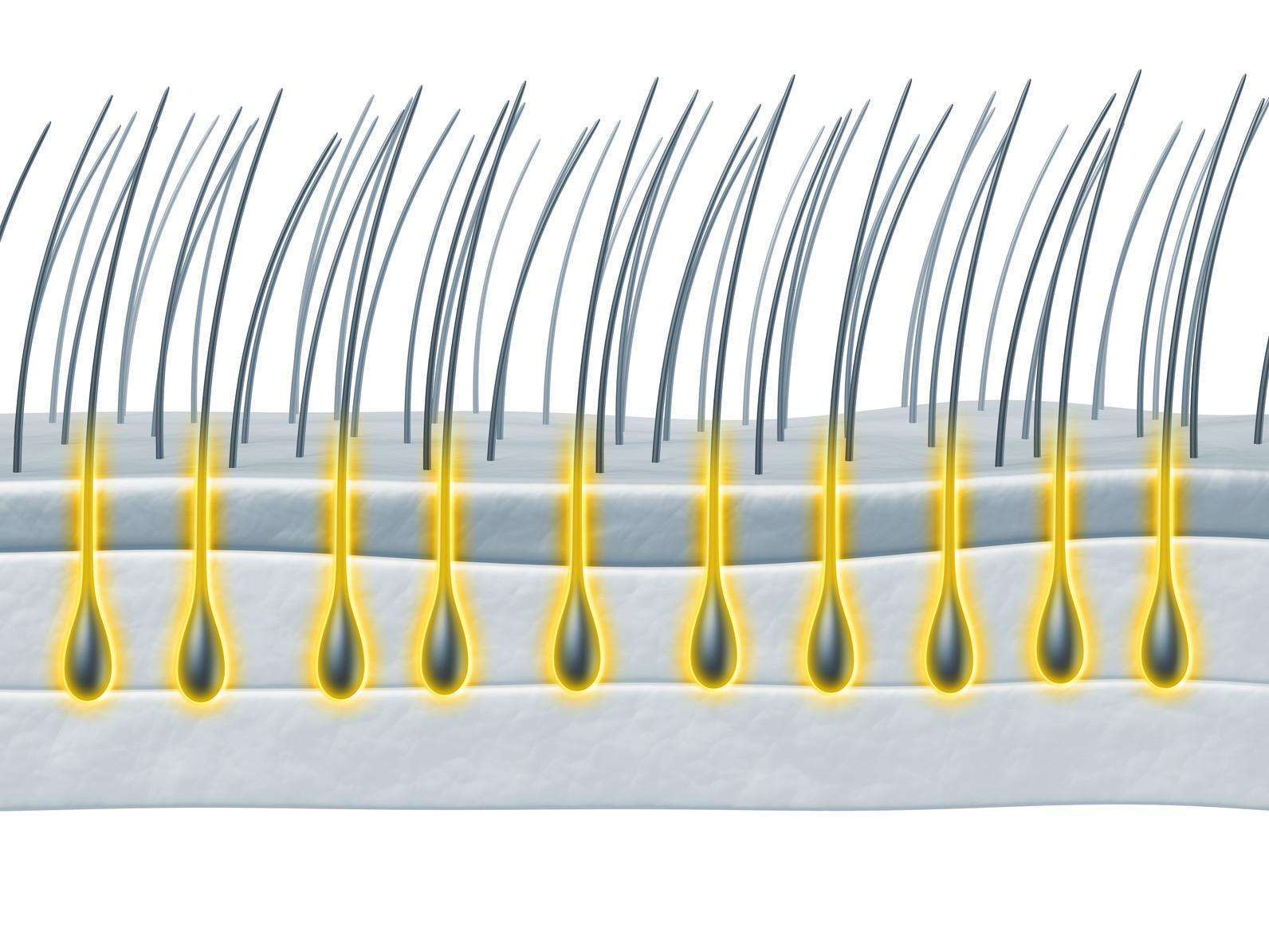 Haarausfall mit Wurzel