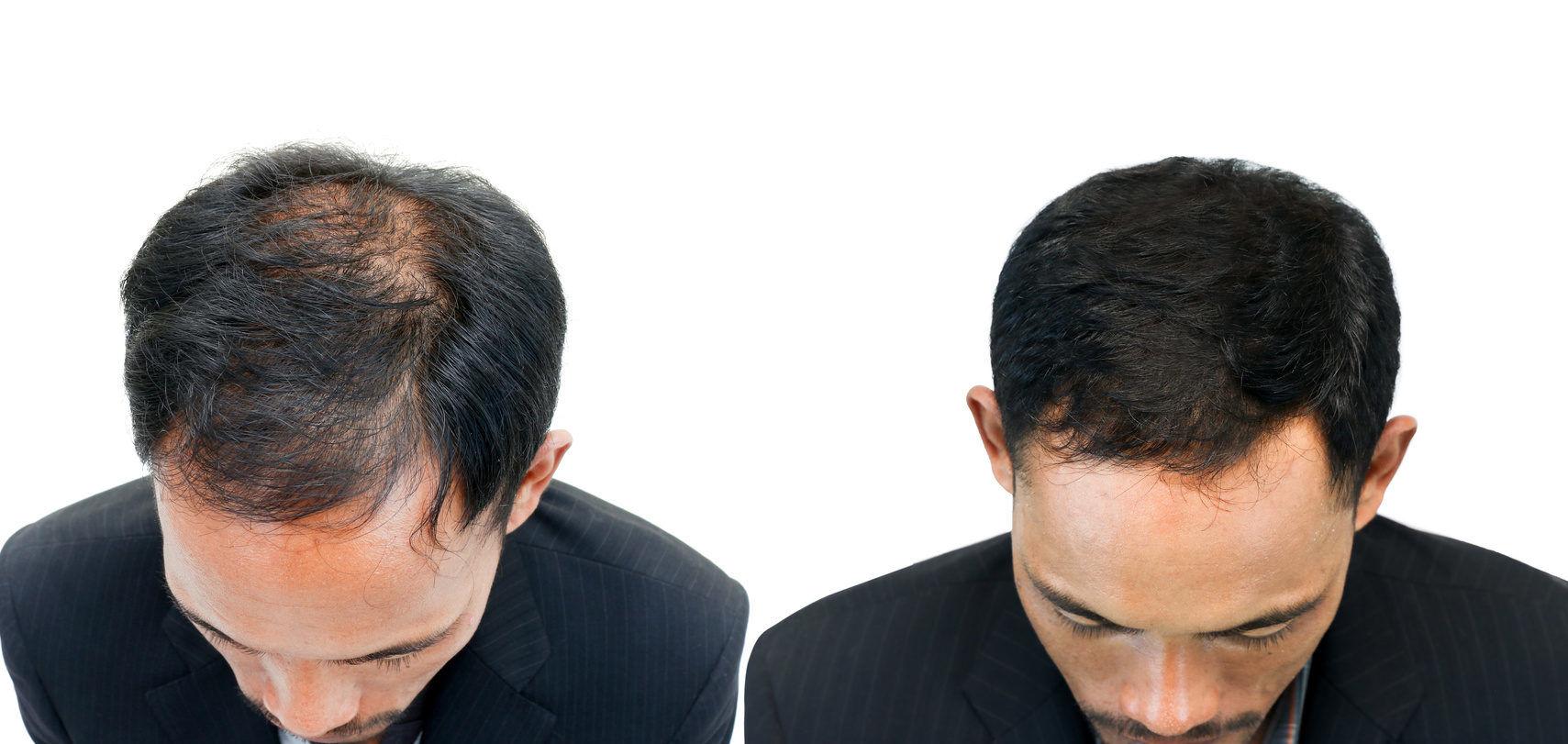 Haarpigmentierung Ergebnisse