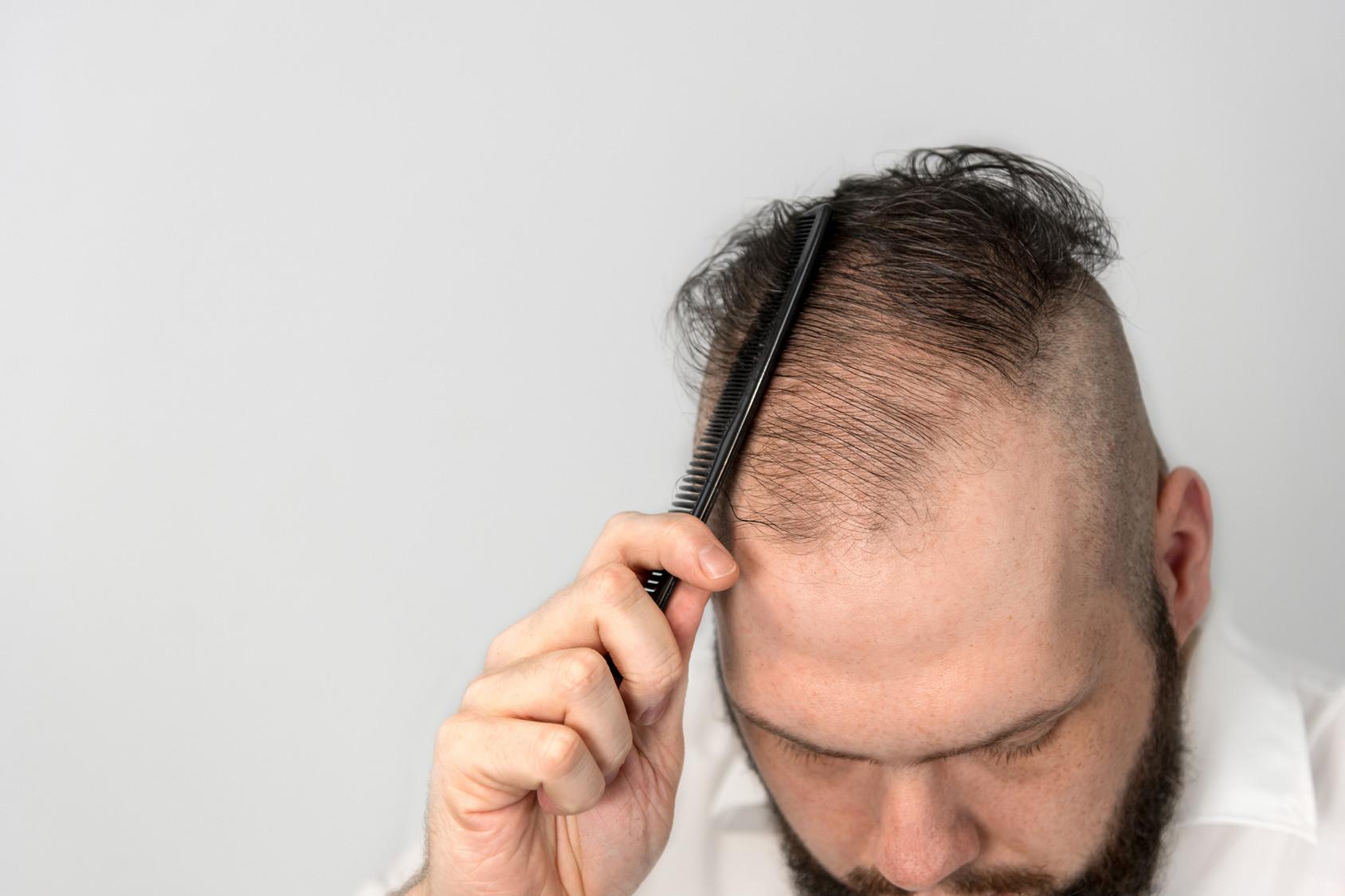 Korrektur einer Haarverpflanzung