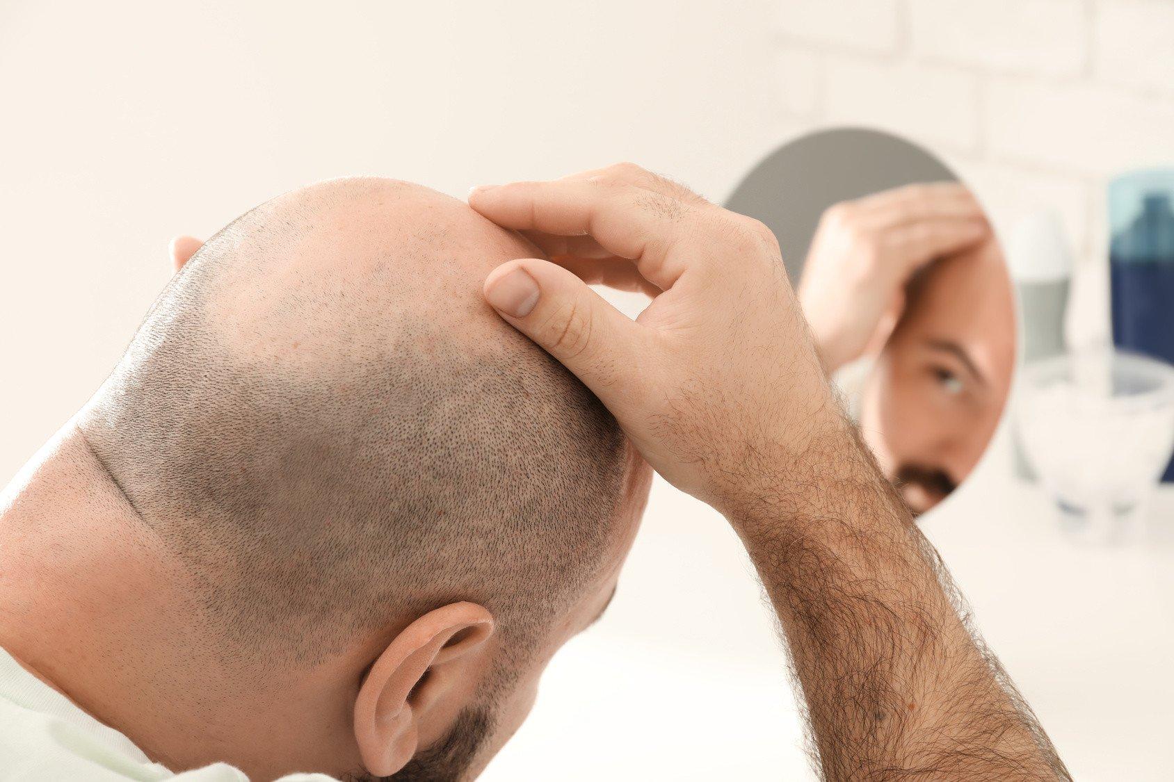 Totaler Haarausfall – Alopecia Universalis
