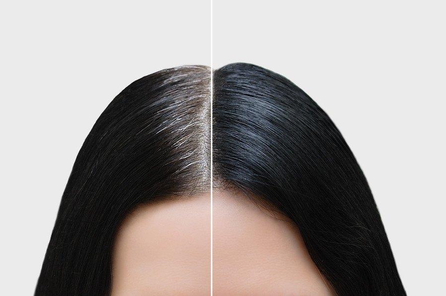 Haartransplantation bei grauen Haar