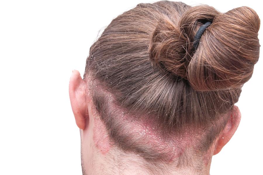 Kopfhaut Pilz - Haarausfall