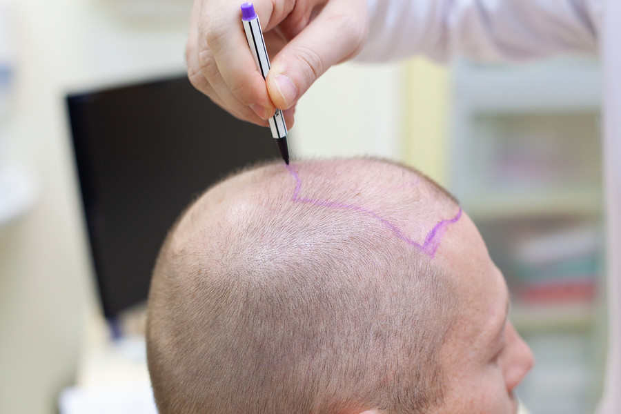 SDHI Haartransplantation Methoden