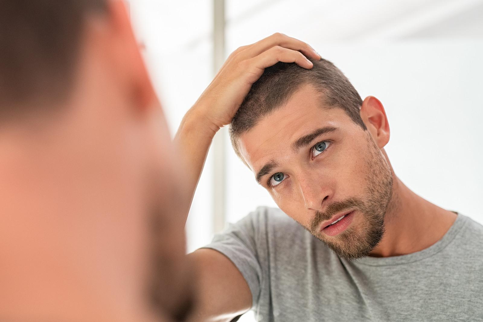 Haarausfall nach der Hauttransplantation entgegenwirken
