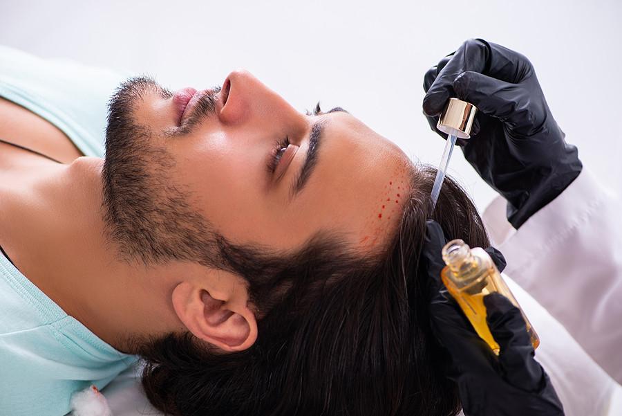 Haartransplantation Tage danach - Was ist zu beachten
