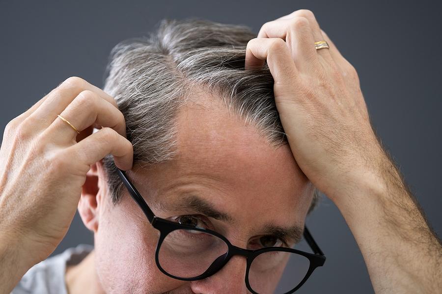 Haartransplantation am Haaransatz